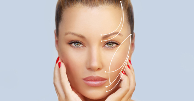 What You Need to Know about Thread Lifts in Plano area